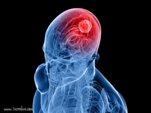 Cancerous Brain Tumors